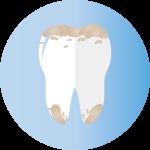 牙垢沉積-150x150