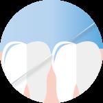 牙線-150x150